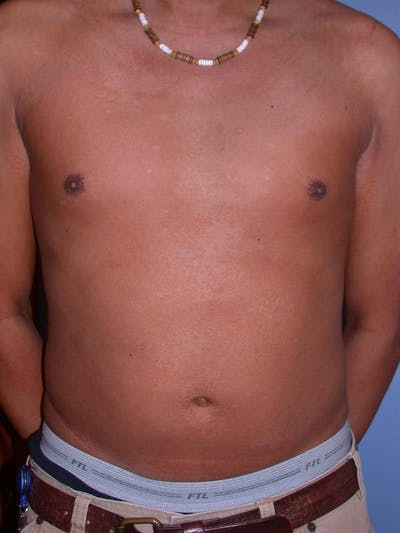 Male Liposuction Gallery - Patient 6097149 - Image 1