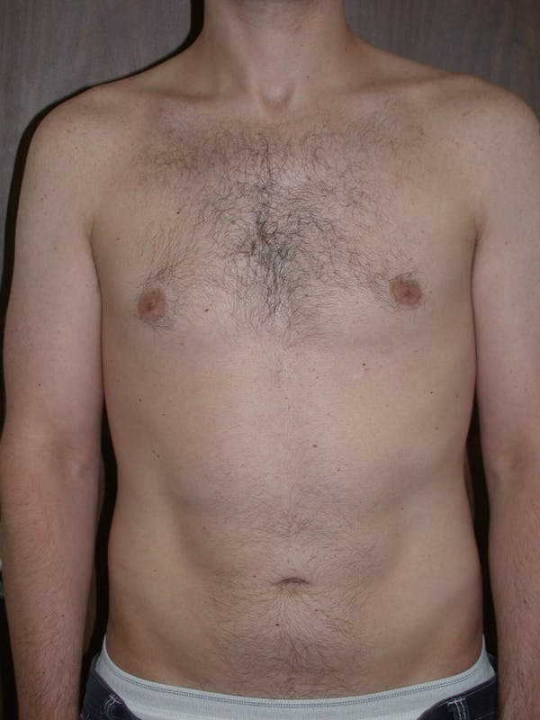 Male Liposuction Gallery - Patient 6097148 - Image 6