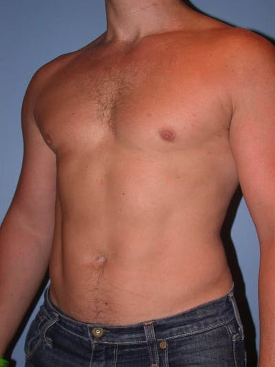 Male Liposuction Gallery - Patient 6097147 - Image 8