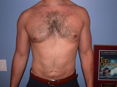 Male Liposuction Gallery - Patient 6097150 - Image 2