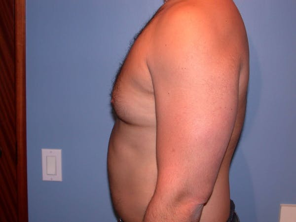 Male Liposuction Gallery - Patient 6097150 - Image 3