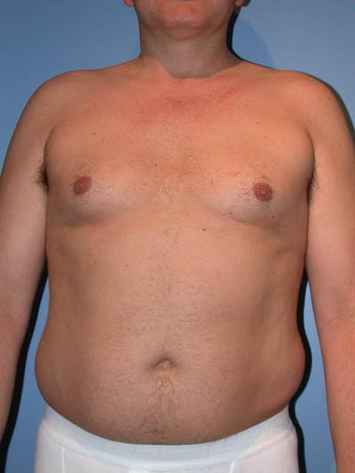 Male Liposuction Gallery - Patient 6097151 - Image 1