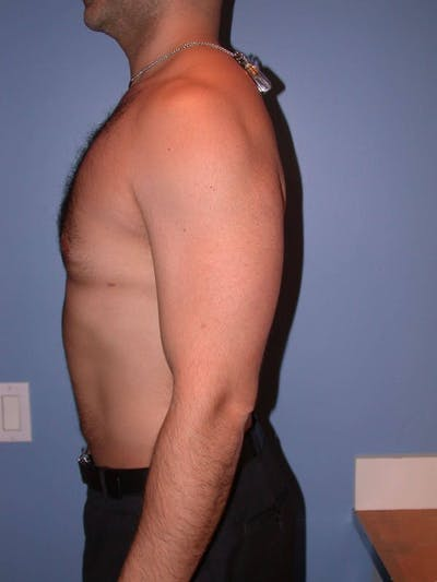 Male Liposuction Gallery - Patient 6097150 - Image 4