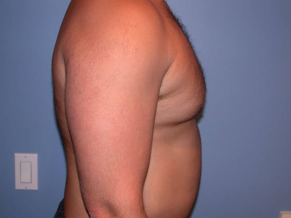 Male Liposuction Gallery - Patient 6097150 - Image 5