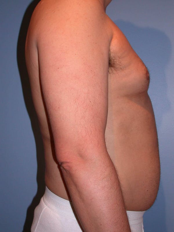 Male Liposuction Gallery - Patient 6097151 - Image 3