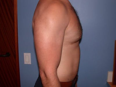 Male Liposuction Gallery - Patient 6097150 - Image 6