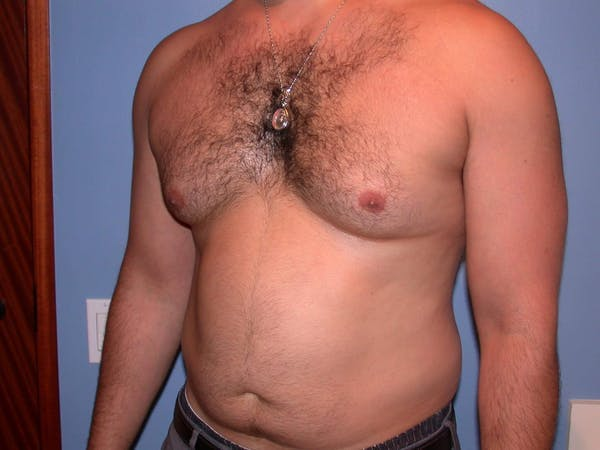 Male Liposuction Gallery - Patient 6097150 - Image 7