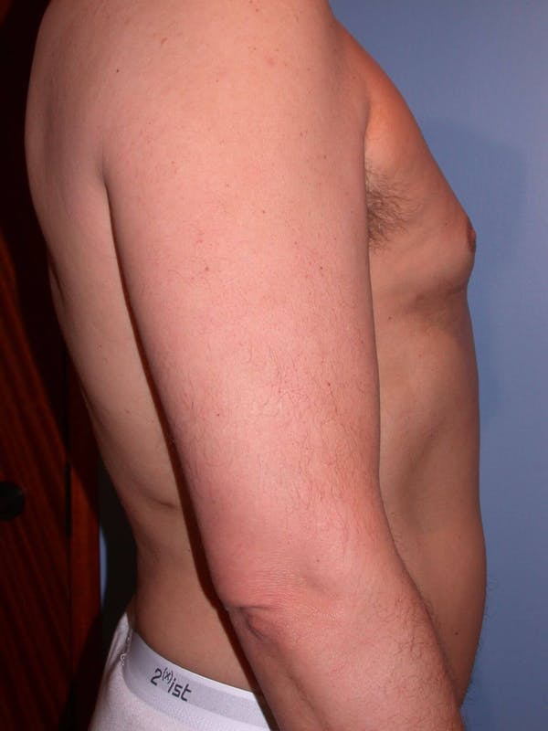 Male Liposuction Gallery - Patient 6097151 - Image 4