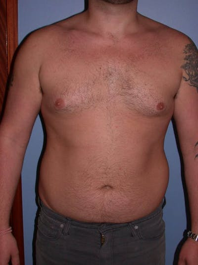 Male Liposuction Gallery - Patient 6097152 - Image 1