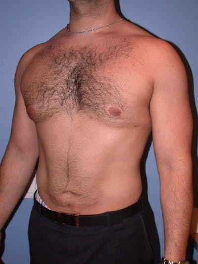 Male Liposuction Gallery - Patient 6097150 - Image 8