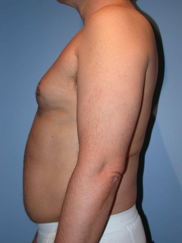 Male Liposuction Gallery - Patient 6097151 - Image 5