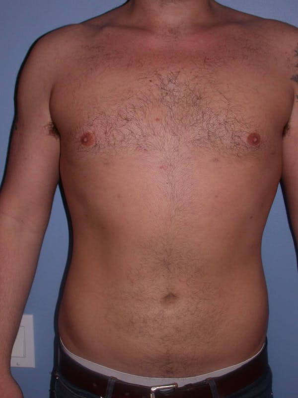 Male Liposuction Gallery - Patient 6097152 - Image 2