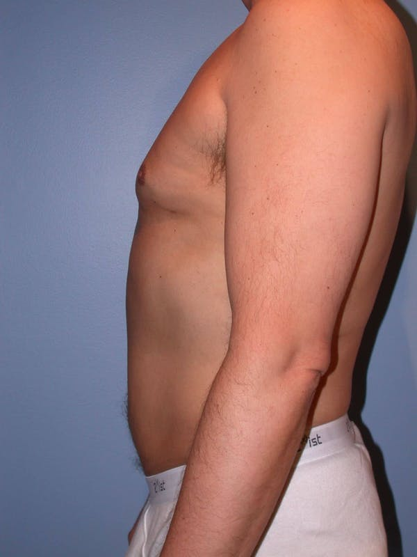 Male Liposuction Gallery - Patient 6097151 - Image 6