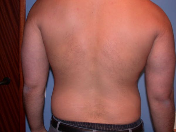 Male Liposuction Gallery - Patient 6097150 - Image 9
