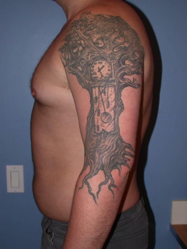 Male Liposuction Gallery - Patient 6097152 - Image 3