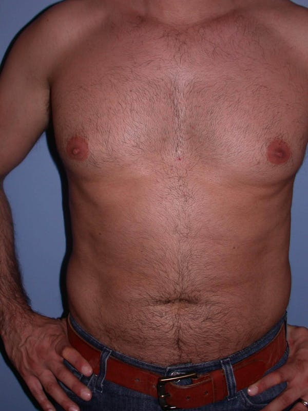 Male Liposuction Gallery - Patient 6097153 - Image 1