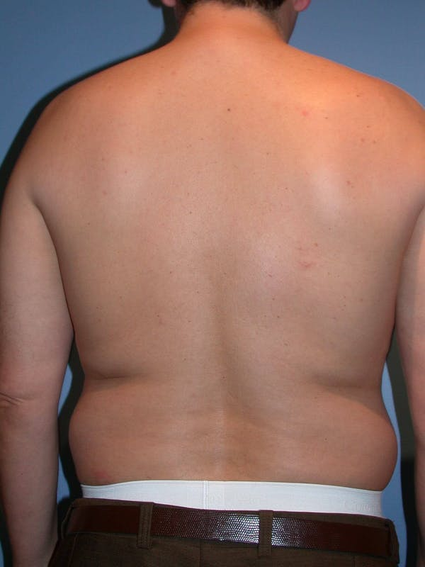 Male Liposuction Gallery - Patient 6097151 - Image 7