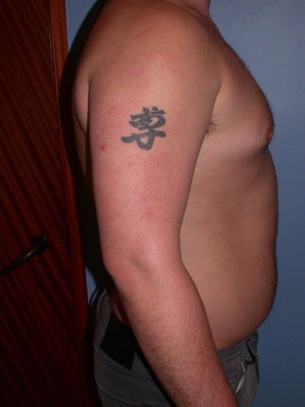 Male Liposuction Gallery - Patient 6097152 - Image 5