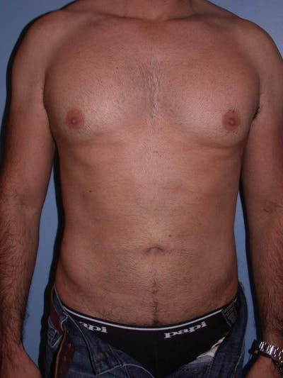 Male Liposuction Gallery - Patient 6097153 - Image 2