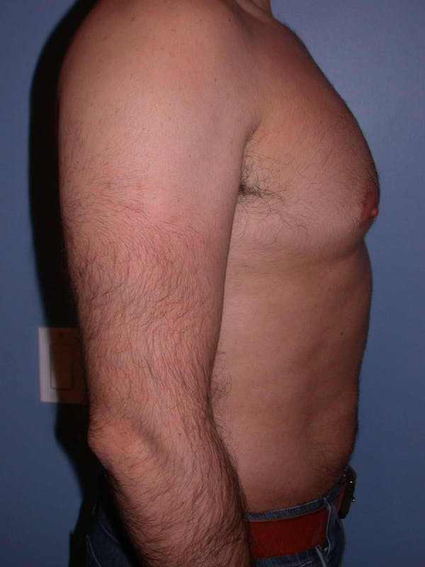 Male Liposuction Gallery - Patient 6097153 - Image 3