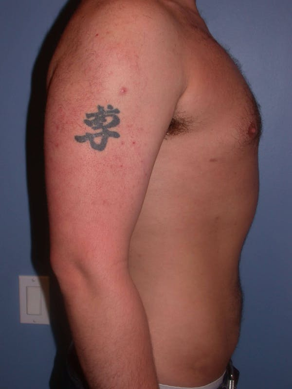 Male Liposuction Gallery - Patient 6097152 - Image 6