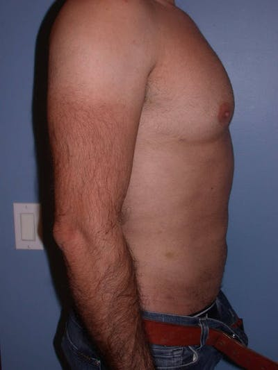 Male Liposuction Gallery - Patient 6097153 - Image 4