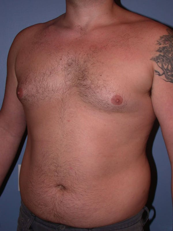Male Liposuction Gallery - Patient 6097152 - Image 7