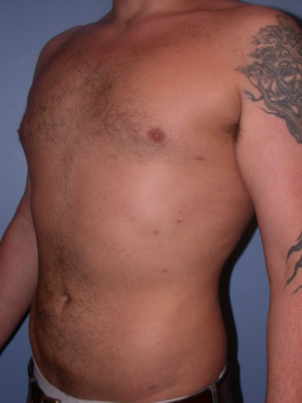 Male Liposuction Gallery - Patient 6097152 - Image 8