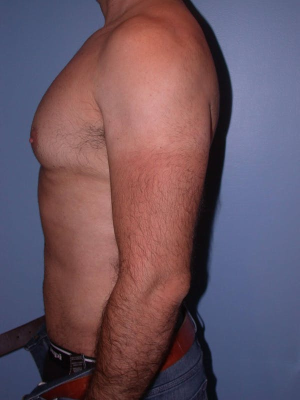 Male Liposuction Gallery - Patient 6097153 - Image 6