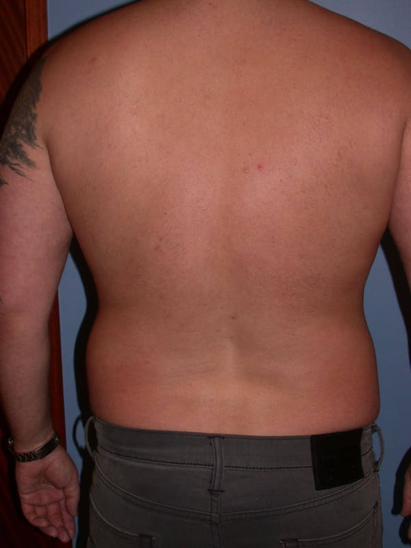 Male Liposuction Gallery - Patient 6097152 - Image 9