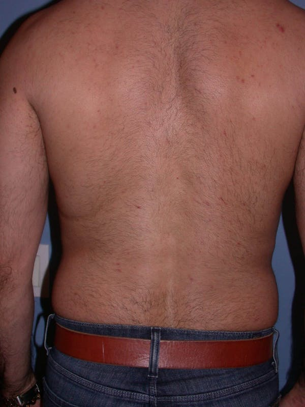 Male Liposuction Gallery - Patient 6097153 - Image 7