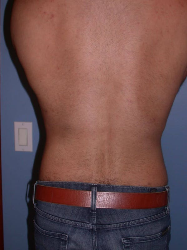 Male Liposuction Gallery - Patient 6097153 - Image 8