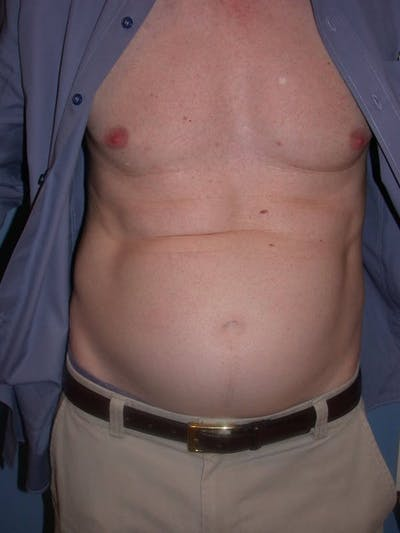 Male Tummy Tuck Gallery - Patient 6097189 - Image 1