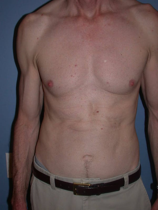 Male Tummy Tuck Gallery - Patient 6097189 - Image 2