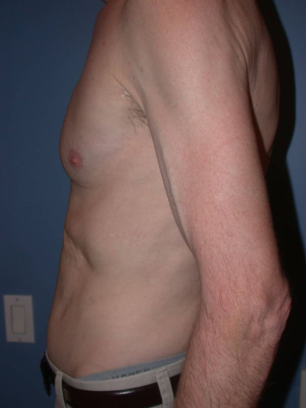 Male Tummy Tuck Gallery - Patient 6097189 - Image 4