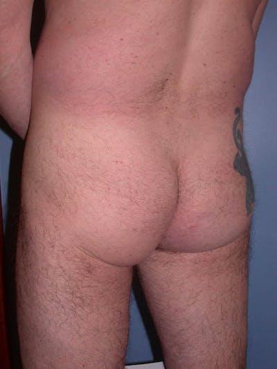 Male Brazilian Butt Lift Gallery - Patient 6097229 - Image 1
