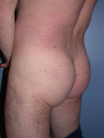 Male Brazilian Butt Lift Gallery - Patient 6097229 - Image 2