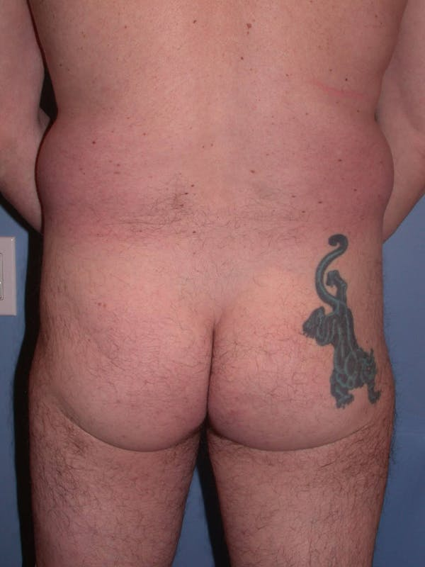 Male Brazilian Butt Lift Gallery - Patient 6097229 - Image 3