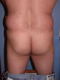 Male Brazilian Butt Lift Gallery - Patient 6097230 - Image 1