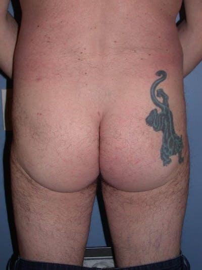Male Brazilian Butt Lift Gallery - Patient 6097229 - Image 4