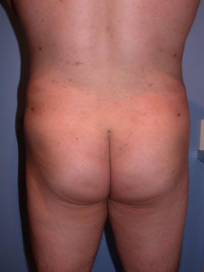 Male Brazilian Butt Lift Gallery - Patient 6097230 - Image 2