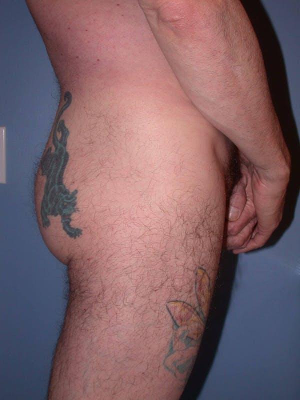 Male Brazilian Butt Lift Gallery - Patient 6097229 - Image 5