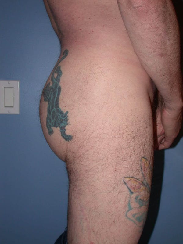 Male Brazilian Butt Lift Gallery - Patient 6097229 - Image 6