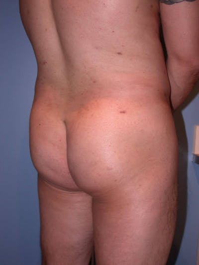 Male Brazilian Butt Lift Gallery - Patient 6097230 - Image 4