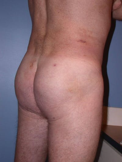 Male Brazilian Butt Lift Gallery - Patient 6097231 - Image 4