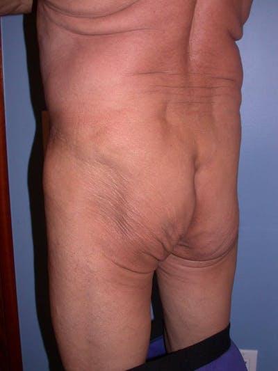 Male Brazilian Butt Lift Gallery - Patient 6097232 - Image 1