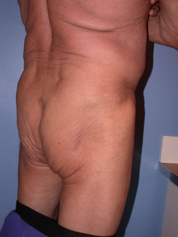 Male Brazilian Butt Lift Gallery - Patient 6097232 - Image 3