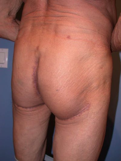 Male Brazilian Butt Lift Gallery - Patient 6097232 - Image 4