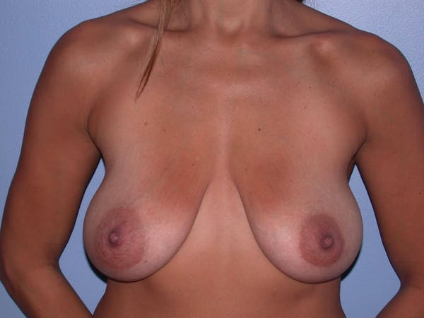 Breast Lift Gallery - Patient 6406821 - Image 1