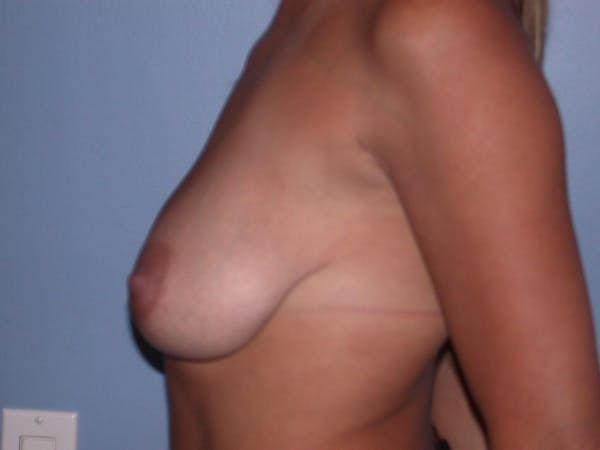 Breast Lift Gallery - Patient 6406821 - Image 3